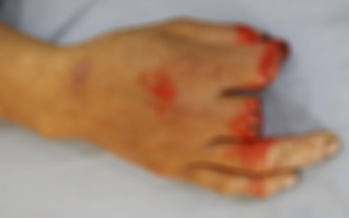 Dùng tay không đẩy thịt xuống họng má